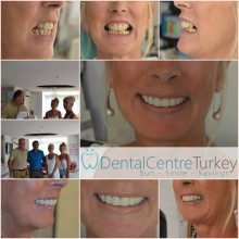 Porcelain Crowns Istanbul