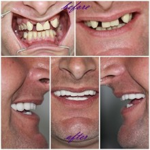 Cosmetic Dentists Istanbul