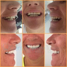 cosmetic dentist in istanbul