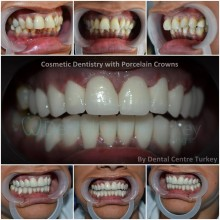 cosmetic dentist istanbul