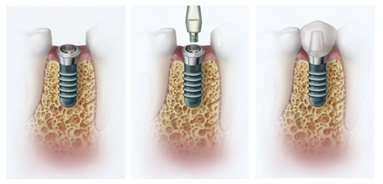 dental implant istanbul examples