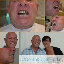 dental treatment in istanbul